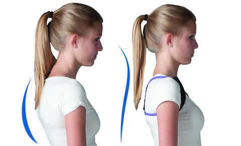 before and after posture medic